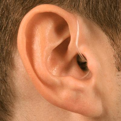 hearing-loss-img4